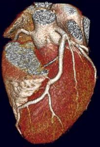 Sample CT Coronary Angiogram